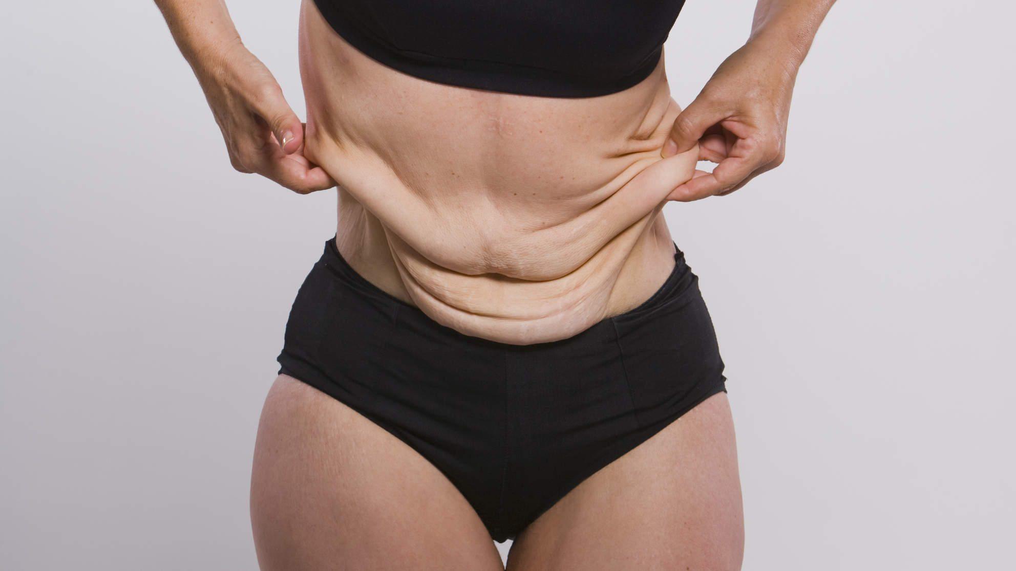 Reafirmar la piel del abdomen despues de adelgazar la