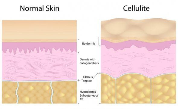 que es la celulitis